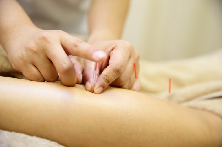 小さな筋肉まで丁寧にほぐしきる手技と、鍼灸施術。